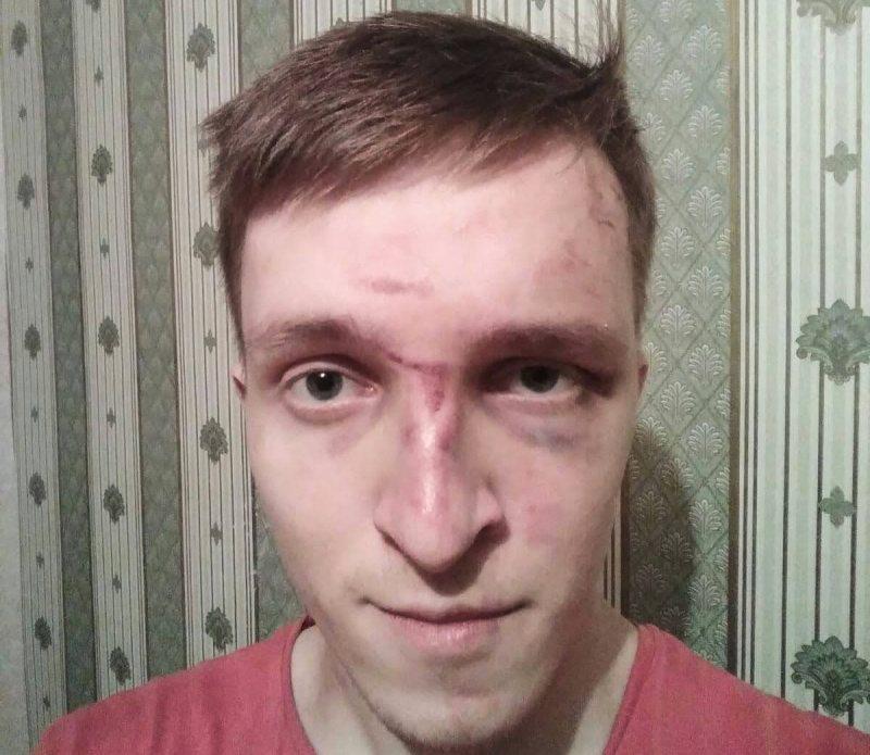 Виктор Актистов после избиения. Фото представлено редакции