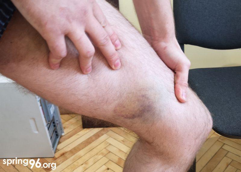 Олег Харитончик показывает побои на своем теле