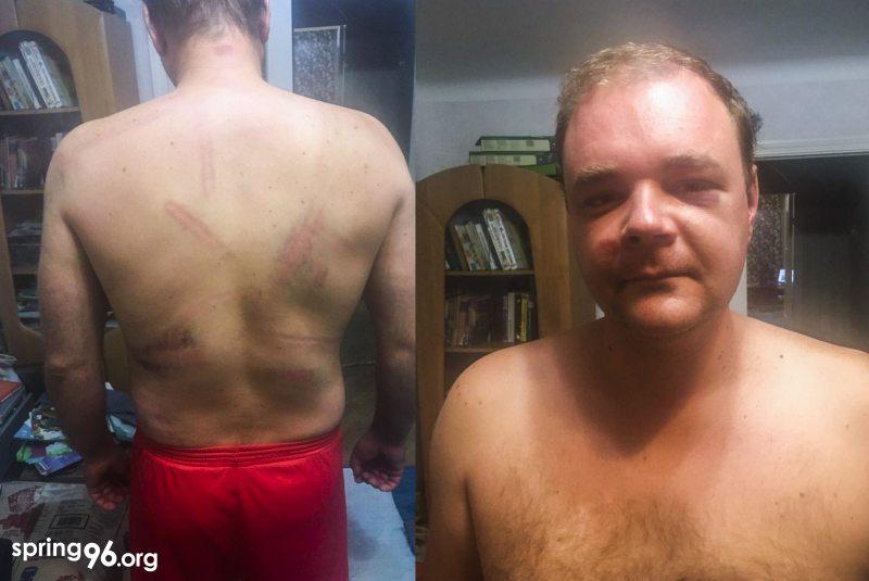 После задержания и избиений Николай Бондарь. Фото: spring96.org