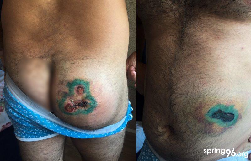 Раны Тимура после выстрелов резиновыми пулями 10 августа