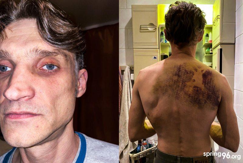 Дмитрий Черныш после избиений 7 октября. Фотография была сделана после 5 суток ареста