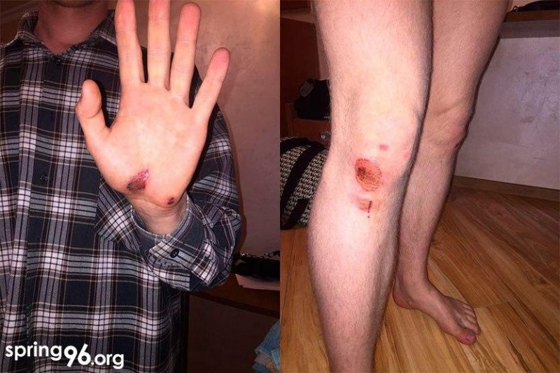 The doctor diagnosed Ivan with multiple scratches and bruises