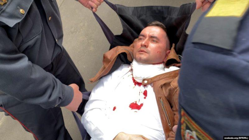Сцяпан Латыпаў пасля спробы самагубства 1 чэрвеня. Фота: