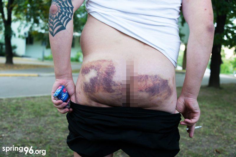 Телесные повреждения Александра Лукьянского Фота Spring96.org