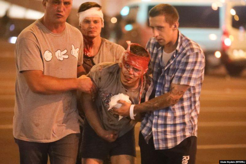 Injured protester in Minsk. August 10, 2020. Photo: Vadzim Zamirouski/tut.by