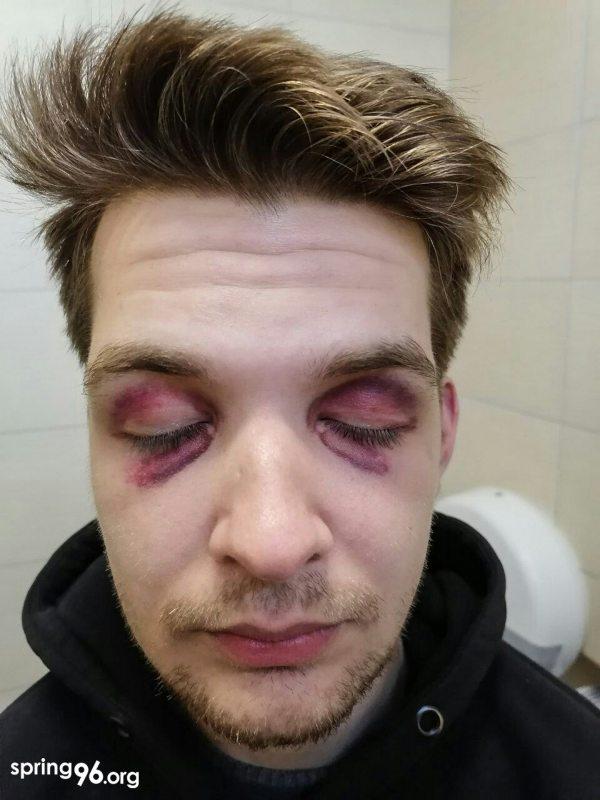 Травмы Якова. Фото: spring96.org